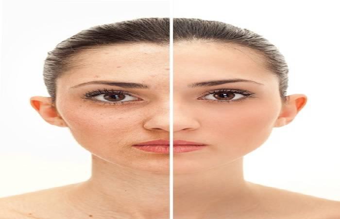 diet to clear skin